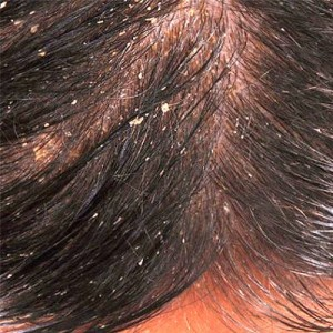 Dandruff In African American Hair Natural Cure